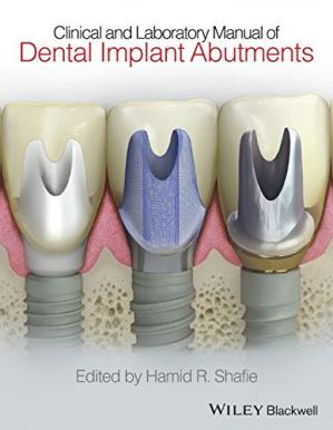 Sampul buku Clinical and Laboratory Manual of Dental Implant Abutments