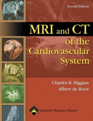 पुस्तक कवर MRI and CT of the Cardiovascular System, 2nd edition