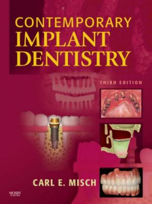 Portada del libro Contemporary Implant Dentistry