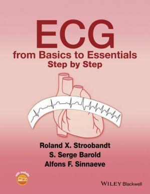 Book cover ECG from Basics to Essentials: Step by Step