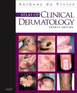 Book cover Atlas of Clinical Dermatology