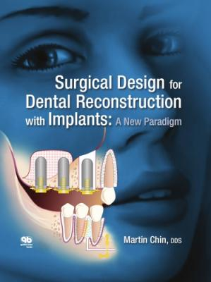 Sampul buku Surgical Design for Dental Reconstruction with Implants: A New Paradigm