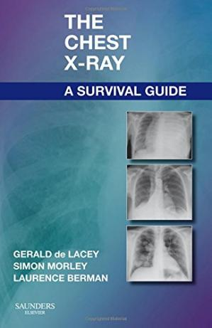 Book cover The Chest X-Ray: A Survival Guide