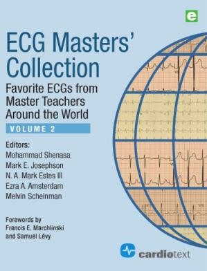 Book cover ECG Masters' Collection: Favorite ECGs from Master Teachers Around the World