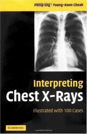 Sampul buku Interpreting Chest X-Rays Illustrated with 100 Cases
