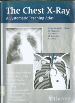 Couverture du livre The Chest X-Ray-The Systematic Teaching Atlas.