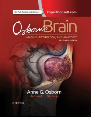 Book cover Osborn's Brain: imaging, pathology, and anatomy