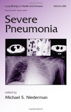 Couverture du livre Severe Pneumonia (Lung Biology in Health and Disease, Volume 206)