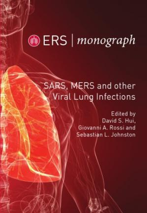 Book cover SARS, MERS and other Viral Lung Infections