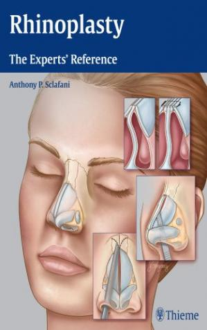 Portada del libro Rhinoplasty: The Experts' Reference