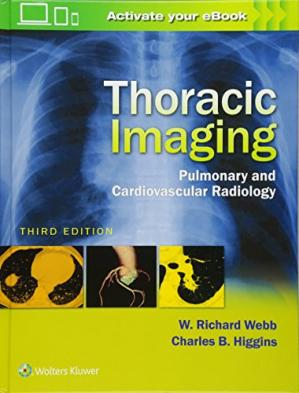 Book cover Thoracic Imaging: Pulmonary and Cardiovascular Radiology
