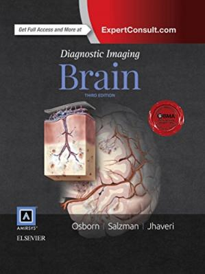 Couverture du livre Diagnostic Imaging: Brain