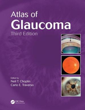 Book cover Atlas of Glaucoma, Third Edition