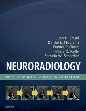 Book cover Neuroradiology: Spectrum and Evolution of Disease