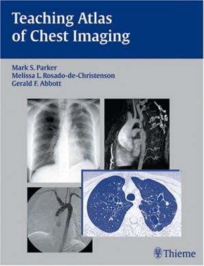 Book cover Teaching Atlas of Chest Imaging