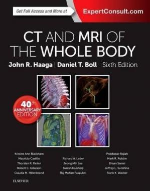 Okładka książki CT and MRI of the Whole Body, 2-Volume Set